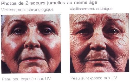 1,2,3 Soleil ! Préparer sa peau au bronzage & se protéger de la tête aux